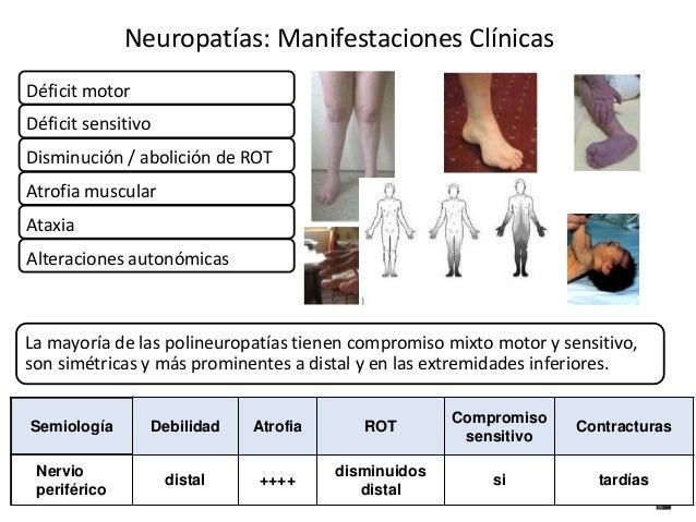 Neuropatías: Manifestaciones Clínicas  Déficit motor  Déficit sensitivo  Disminución / abolición de ROT  Atrofia muscular ...