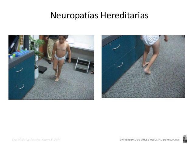 Neuropatías Hereditarias  UNIVERSIDAD Dra. Ma de los Angeles Avaria B. 2014 DE CHILE / FACULTAD DE MEDICINA