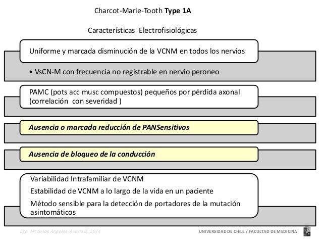 Charcot-Marie-Tooth Type 1A  Características Electrofisiológicas  Uniforme y marcada disminución de la VCNM en todos los n...