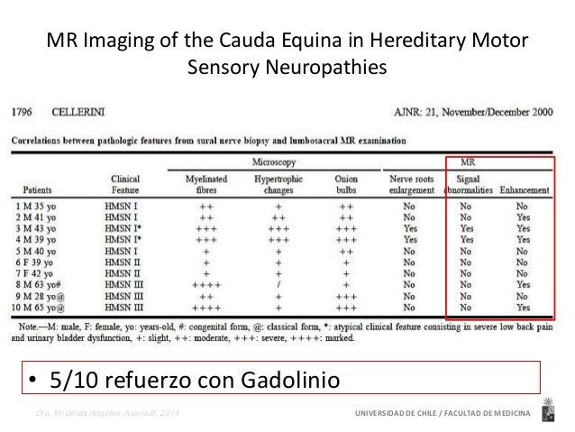 Diagnostico diferencial  CIDP  Toxicas  Neurometabolicas /Degenerativas  • Ataxia telangectasia  • Ataxia de Friedreich  •...