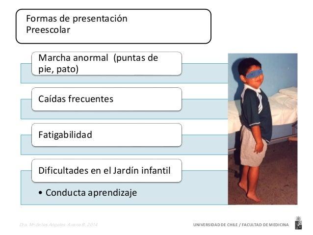 Formas de presentación  Preescolar  Marcha anormal (puntas de  pie, pato)  Caídas frecuentes  Fatigabilidad  Dificultades ...