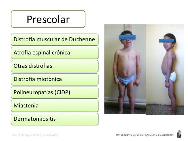 Preescolar  Prescolar  Distrofia muscular de Duchenne  Atrofia espinal crónica  Otras distrofias  Distrofia miotónica  Pol...