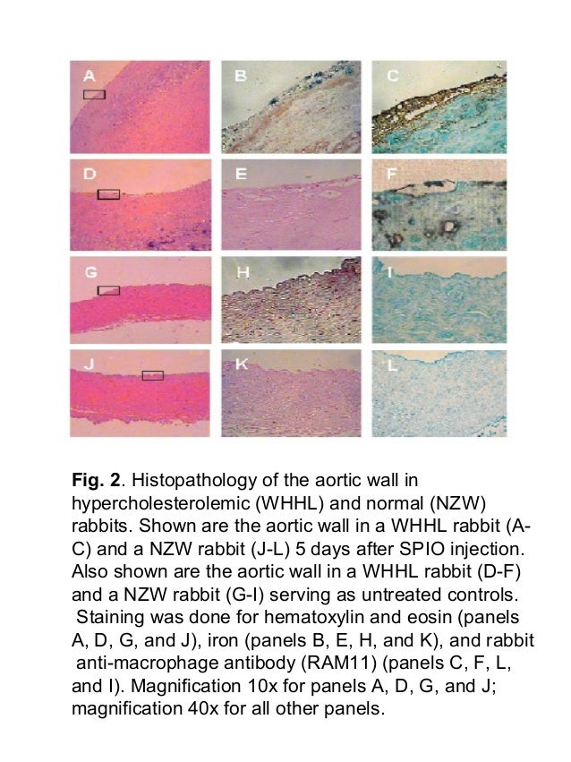 Fig. 2. Histopathology of the aortic wall in hypercholesterolemic (WHHL) and normal (NZW) rabbits. Shown are the aortic wa...