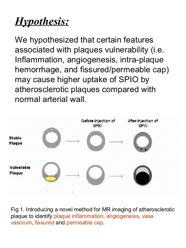 Hypothesis: We hypothesized that certain features associated with plaques vulnerability (i.e. Inflammation, angiogenesis, ...