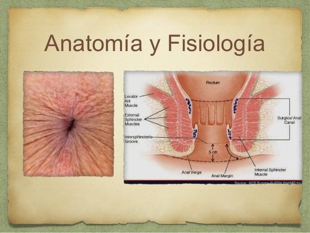 Sintomas posteriores a penetracion anal
