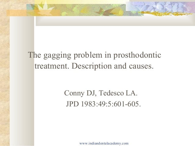 The gagging problem in prosthodontic treatment. Description and causes. Conny DJ, Tedesco LA. JPD 1983:49:5:601-605.  www....
