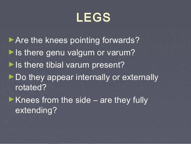 Increased Walking BaseIncreased Walking Base ►Normal walking base: 5-10 cmNormal walking base: 5-10 cm Common causes:Commo...