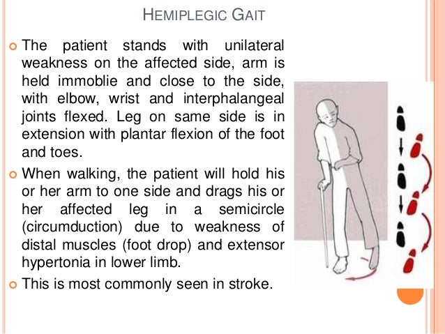 Gait abnormalities