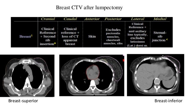 Chest wall CTV after MRM