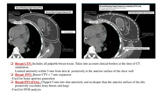 Role of IMRT in breast radiotherapy