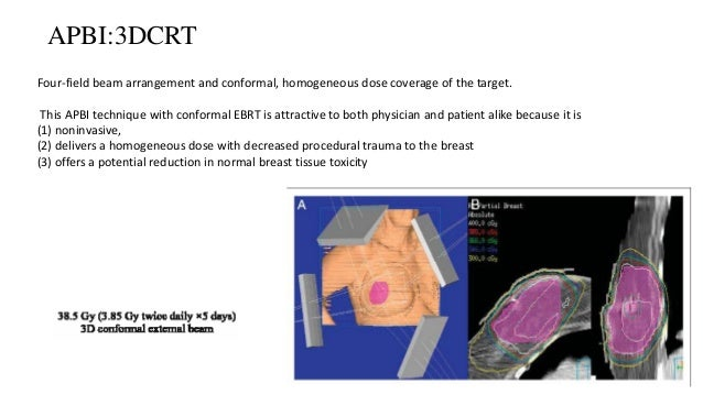 Partial breast irradiation techniques Interstitial Brachyther. Intracavitary Brachyther Intraop. RT 3D Conformal RT Dose 3...