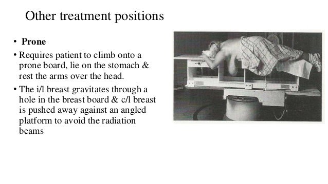 Other treatment positions • Prone • Requires patient to climb onto a prone board, lie on the stomach & rest the arms over ...