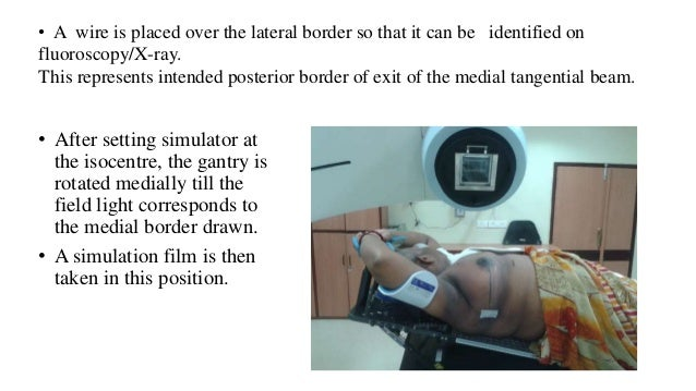 • After setting simulator at the isocentre, the gantry is rotated medially till the field light corresponds to the medial ...