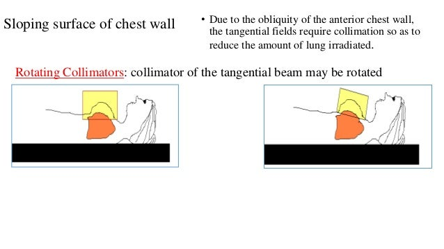 Sloping surface of chest wall • Due to the obliquity of the anterior chest wall, the tangential fields require collimation...