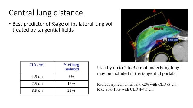 To prevent excess volume of lung irradiated, the divergence of the deep margins is matched. 2 ways - angle the central axe...