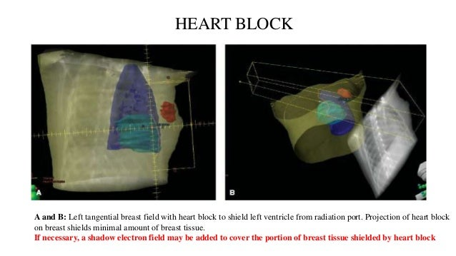 Irradiation Dose to the Contralateral Breast • radiation dose to the contralateral breast is of concern due to potential l...