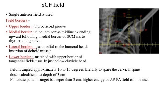• Images of a radiation treatment field used to treat the axillary apex/ SCF. • The level III region of the axillary and t...