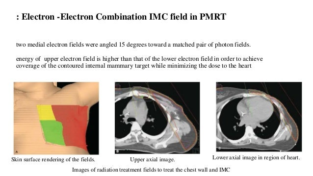 Junctional electron field technique particularly of benefit for patients with very little tissue between the lung and skin...