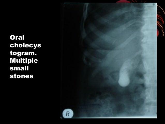 CT imageCT image demonstratesdemonstrates largelarge gallstone ingallstone in thethe gallbladdergallbladder