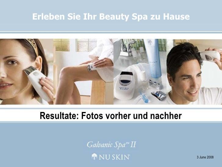 Erleben Sie Ihr Beauty Spa zu Hause 3 June 2008 Resultate: Fotos vorher und nachher