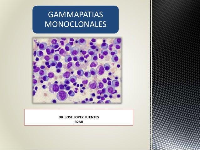 GAMMAPATIAS MONOCLONALES DR. JOSE LOPEZ FUENTES R2MI