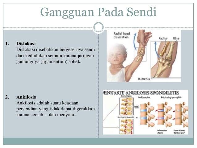Penyebab nyeri lutut setiap hari