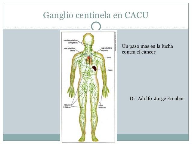 Ganglio centinela en CACU Un paso mas en la lucha contra el cáncer Dr. Adolfo Jorge Escobar