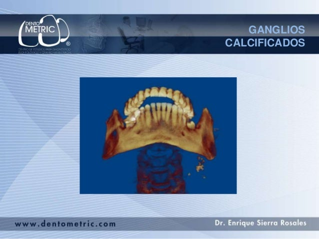 GANGLIOS CALCIFICADOS