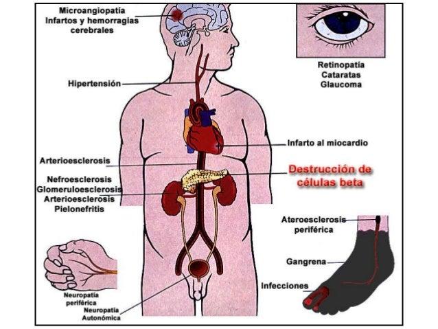 Glycemia SBP < 120 SBP < 140 Group Group Trial mm Hg mm Hg A B A1c < 6.0% 5128 7.0% <= A1c <= 7.9% 5123 2362 2371 2753 276...