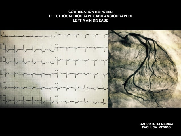 GARCIA INTERMEDICA PACHUCA, MEXICO CORRELATION BETWEEN ELECTROCARDIOGRAPHY AND ANGIOGRAPHIC LEFT MAIN DISEASE