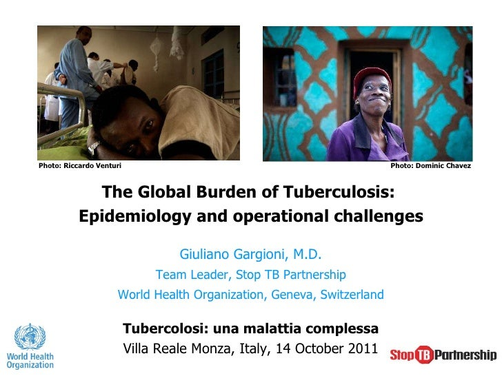 The Global Burden of Tuberculosis:  Epidemiology and operational challenges Giuliano Gargioni, M.D. Team Leader, Stop TB P...