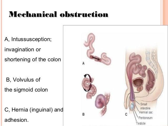 how to help intestinal blockage