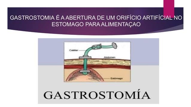 GASTROSTOMIA É A ABERTURA DE UM ORIFÍCIO ARTIFÍCIAL NO ESTOMAGO PARA ALIMENTAÇAO