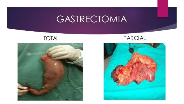 GASTRECTOMIA TOTAL PARCIAL