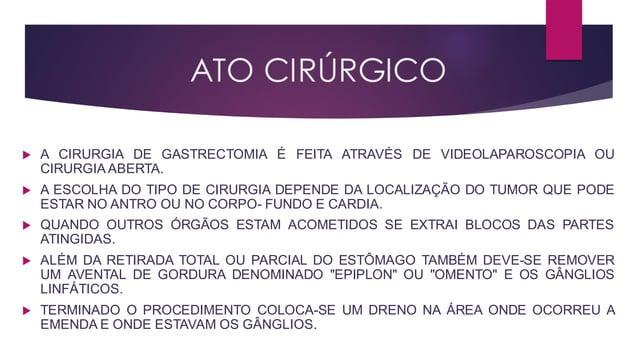 ATO CIRÚRGICO  A CIRURGIA DE GASTRECTOMIA É FEITA ATRAVÉS DE VIDEOLAPAROSCOPIA OU CIRURGIA ABERTA.  A ESCOLHA DO TIPO DE...