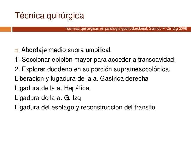 Técnica quirúrgica  Abordaje medio supra umbilical. 1. Seccionar epiplón mayor para acceder a transcavidad. 2. Explorar d...