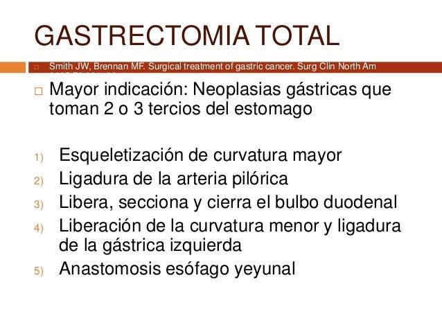 GASTRECTOMIA TOTAL  Mayor indicación: Neoplasias gástricas que toman 2 o 3 tercios del estomago 1) Esqueletización de cur...