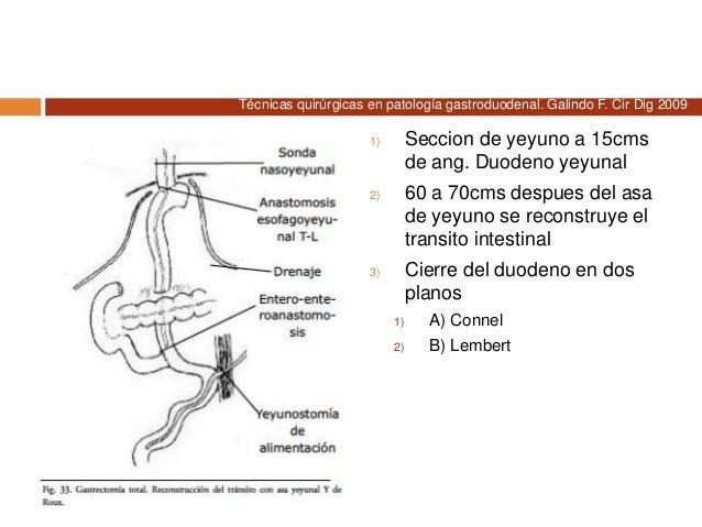 Gastrectomía subtotal  Indicaciones  Neoplasias malignas de antro y tercio medio estomago  Abordaje  Incisión paramedi...