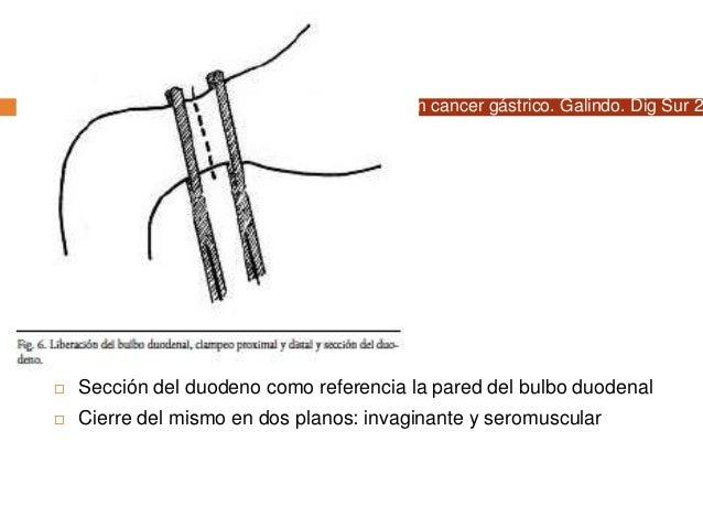  Buscar ángulo duodeno yeyunal  15 cms abajo sitio de anastomosis a yeyuno  No debe quedar a tensión