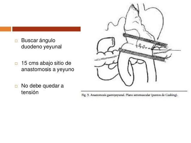  Ligadura de los vasos de la submucosa en estómago