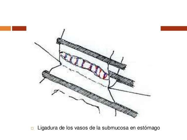  Plano perforante posterior. Surget. En la línea de puntos seccionar la pared anterior del estómago
