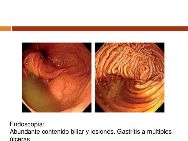 D Mutter, Complicaciones de las gastrectomías, Encyclopédie Médico-Chirurgicale –
