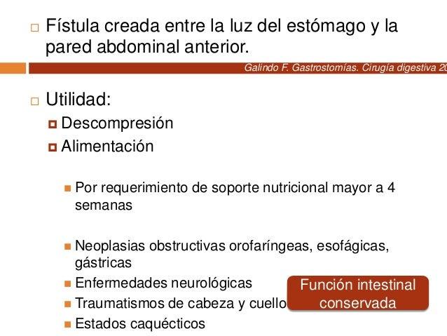  Sonda de gastrostomía