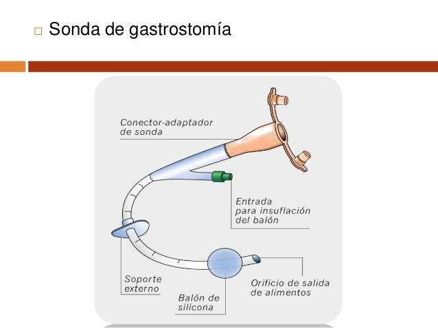 Galindo F. Gastrostomías. Cirugía digestiva 20