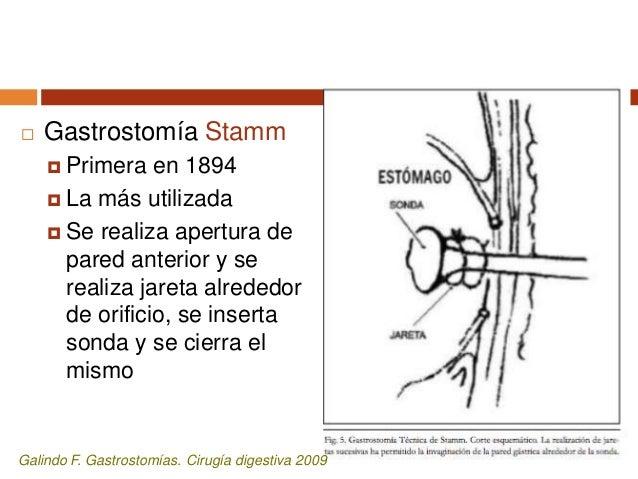  Gastrostomía Janeway (permanente)  Realizar colgajo en la pared anterior curvatura mayor, formar un tubo gástrico que s...
