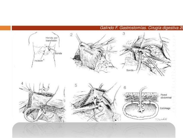 Galindo F. Gastrostomías. Cirugía digestiva 2009