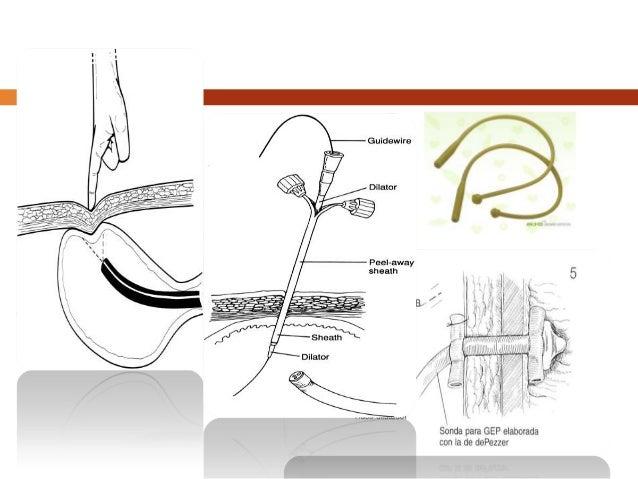 Gastrectomias