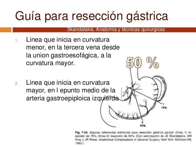 Guía para resección gástrica 1. Linea que inicia en curvatura menor, en la tercera vena desde la union gastroesofágica, a ...