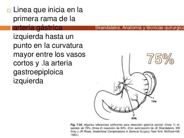  Linea que inicia en la primera rama de la arteria gástrica izquierda hasta un punto en la curvatura mayor entre los vaso...