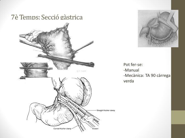 Esquema reconstrucció    De c' a d' hi ha d'haver un mínim de 60 cm (evitar refluxe biliar)